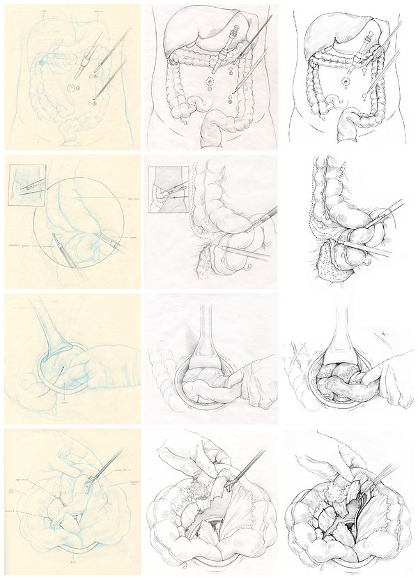 iterations of surgical illustrations