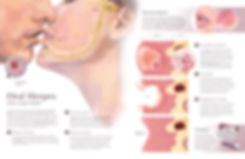 pathology of oral herpes