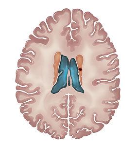 MRI render 4