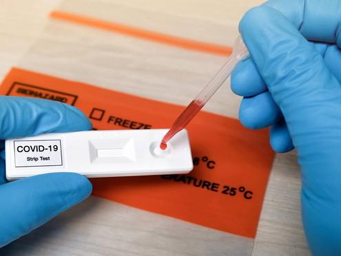 The plot thickens around antibody testing