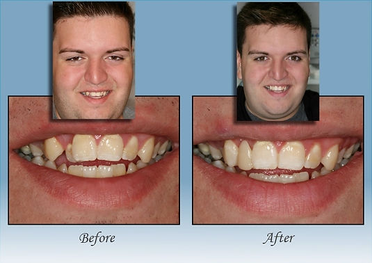 Guido Family Dentistry single day crown