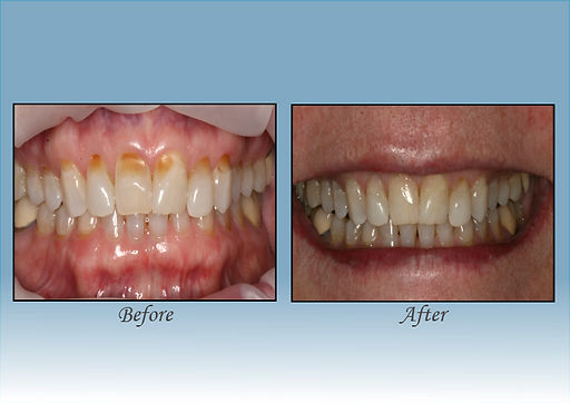 Guido Family Dentistry painless filling