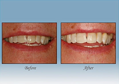 Guido Family Dentistry whitening