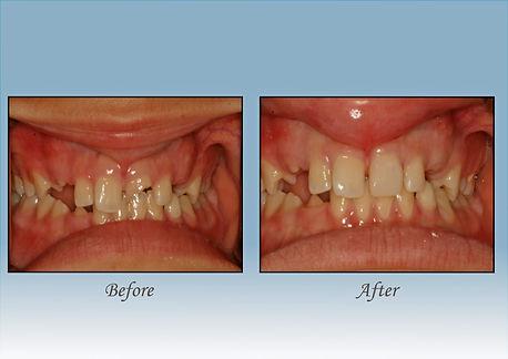 Guido Family Dentistry filling