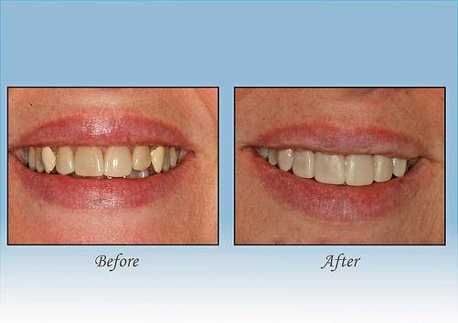 Guido Family Dentistry veneers