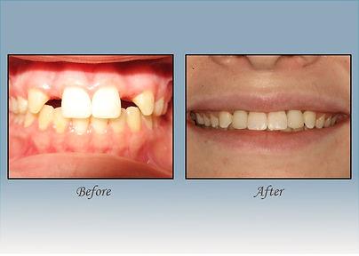Guido Family Dentistry dental implants