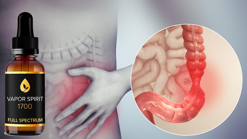 cbd magenbeschwerden