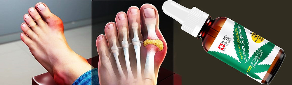cbd arthrose