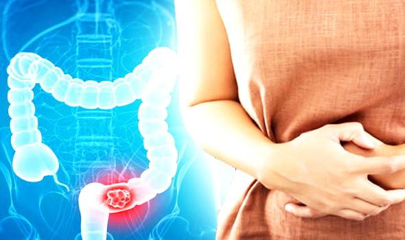 CBD bei Magenprobleme