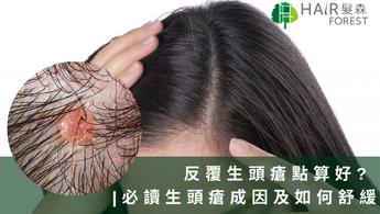 反覆生頭瘡點算好?    必讀生頭瘡成因及如何舒緩