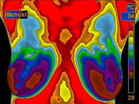 TH1 Normal Non-Vascular.jpg