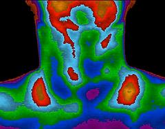 Thyroiditis.png