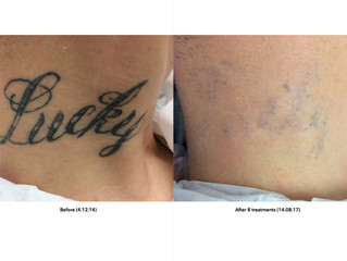 Tattoo Removal: What We Can Achieve!