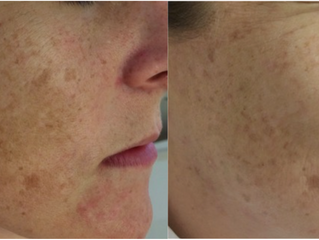 Say Goodbye to Unwanted Pigmentation
