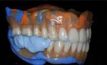blueskyplan denture module sample