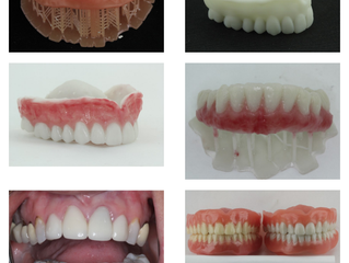 Time is Running Out for FREE DENTURE EXPORTS