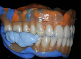 Digital Dentures Entirely in House