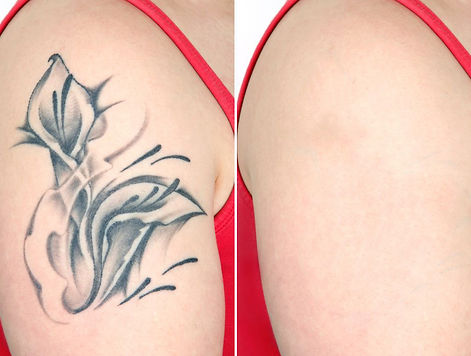 tattoo-removal-cream-3.jpg