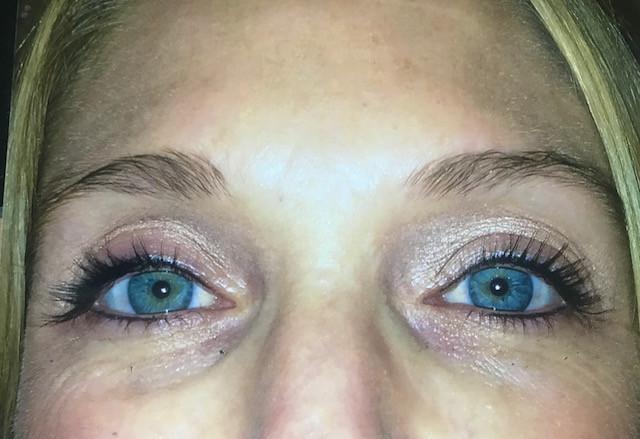 after tattooed eyeliner