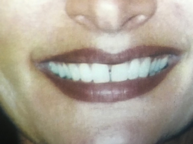 after tattooed lips