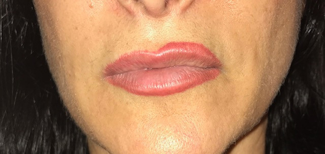 before lip tattoo removal