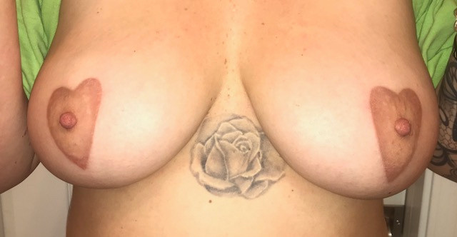 after areola pigmentation