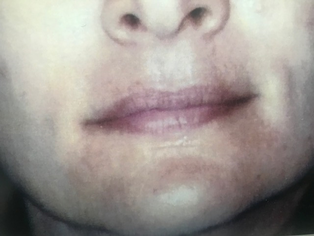 before tattooed lips