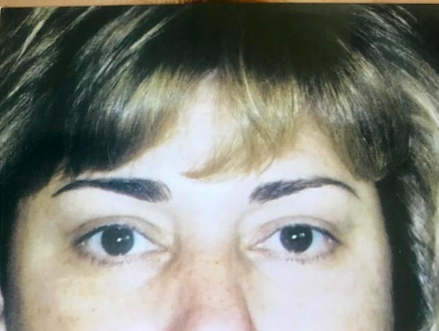 before tattooed eyeliner