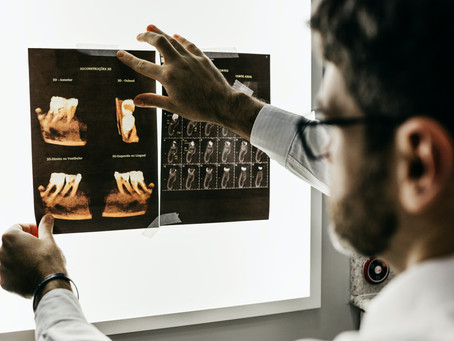 Do I Need an X Ray or MRI?