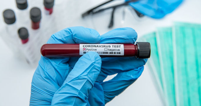 False Positive Covid Tests Will Extend Unjustified Lockdowns, Fauci Admits 'Miniscule' Accuracy