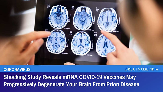 Shocking Study Shows mRNA COVID Vaccines May Progressively Degenerate Your Brain From Prion Disease