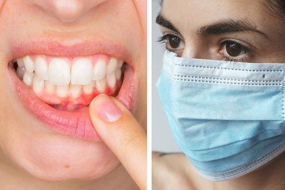Coronavirus masks are killing people, dentists warn