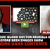 Never Before Seen: Blood Doctor Reveals HORRIFIC Findings After Examining Vials