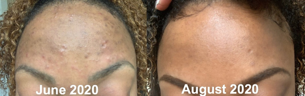 Curology PMD Clarisonic Skincare Results