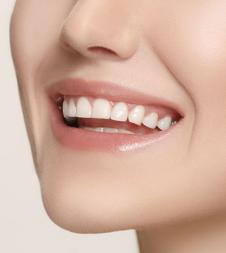 Teeth Whitening | Cosmetic Dentistry | Ocean Dental Care Oakville | Dentists Dental Clinics in Oakville Ontario