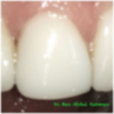 Veneer Repair Before & After - Treatment Gallery - Moonstone Dental