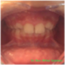 Early Ortho Before & After - Treatment Gallery - Moonstone Dental