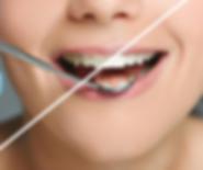 Teeth Whitening | Moonstone Dental | Dentist | Dental Clinic | Oakville | Mississauga