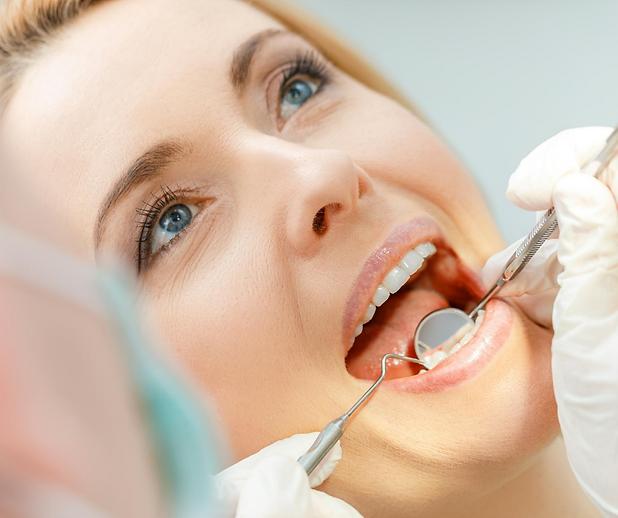 Veneers | Moonstone Dental | Dentist | Dental Clinic | Oakville | Mississauga