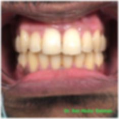 Orthordontics Before & After - Treatment Gallery - Moonstone Dental