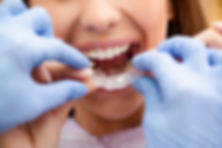 Orthodontics - Invisalign Cambridge Centre Dental Care - Dentists | Dental Office in Cambridge - Ontario.jpg