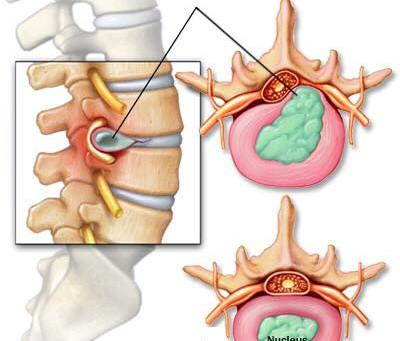 Osteopatia: DISCOPATIE ed ERNIE del disco inter-vertebrale