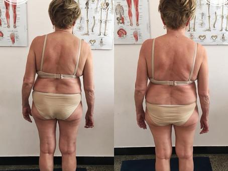 Paziente scoliotico: prima e dopo il trattamento