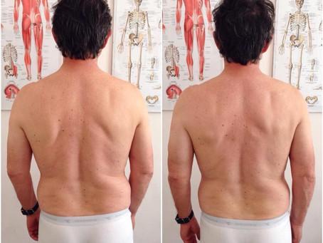 Prima e dopo 1a seduta su paziente con lombalgia.