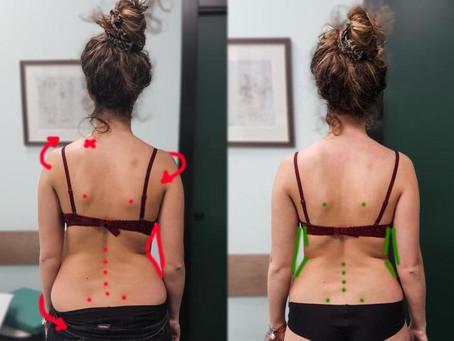 Per quale motivo è importante avere una corretta postura?