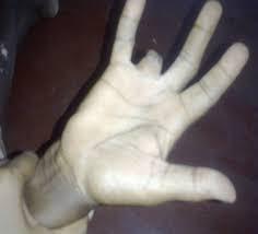 The Boney Finger