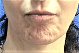 Dimpled-Chin-Dr.-Gidon-Frame.jpg