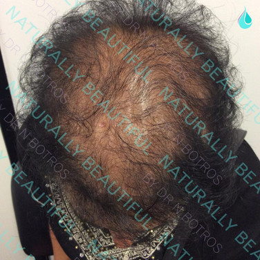 PRP Hair Loss Therapy - After
