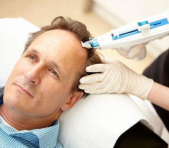 mesotherapie_bei_haarausfall_dermatologi