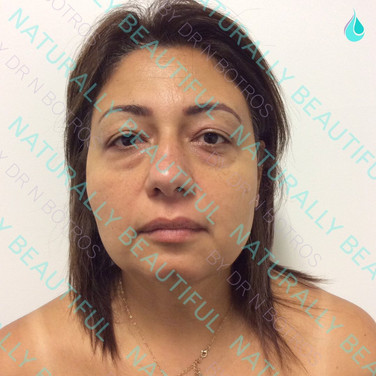 Eyelid Blepharoplasty - After
